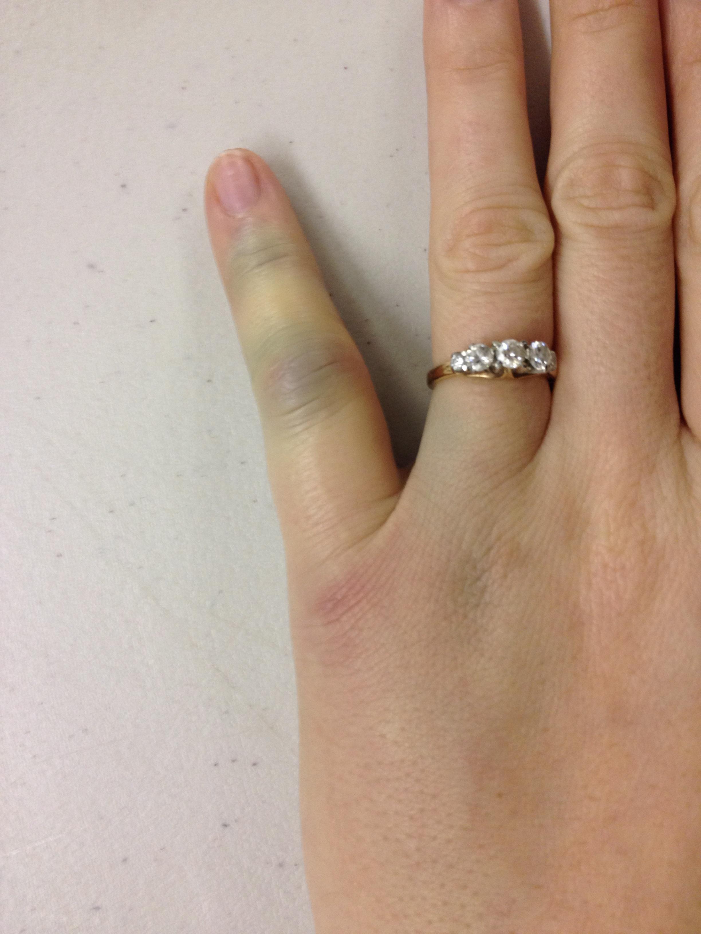 Inspirational Wedding Ring Rash Spreading Wedding